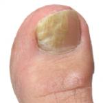 ugly-toenail